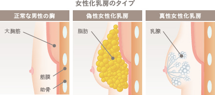service_gynecomastia_content_001 (1)