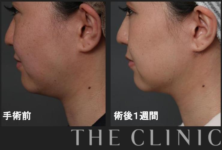顔の脂肪吸引で二重顎を改善
